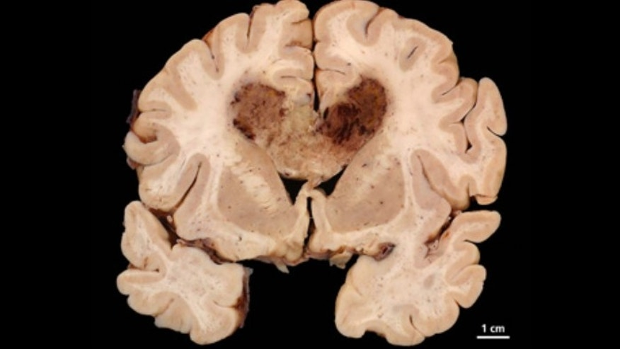This image shows a human brain specimen with glioblastoma multiforme.