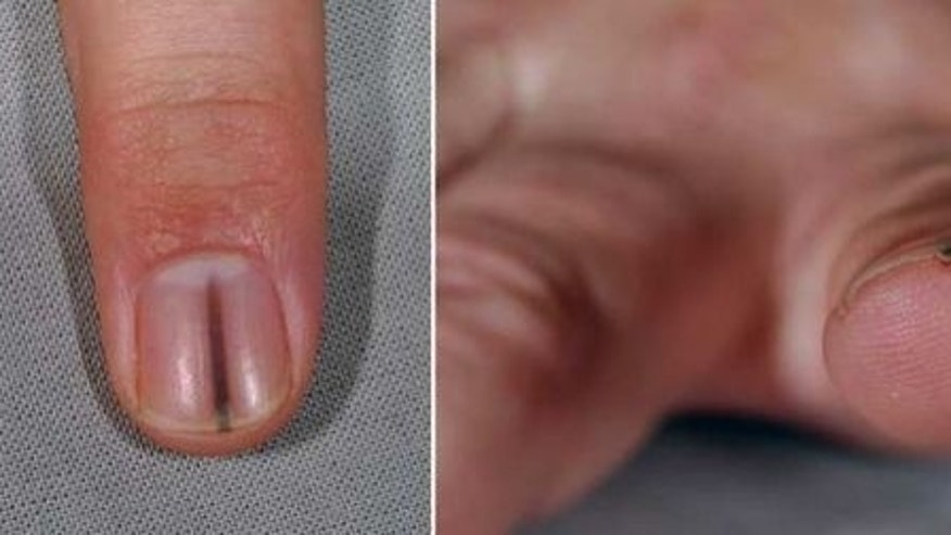 A long, dark streak under a man's fingernail was not a splinter, as originally thought, but a benign nail tumor.