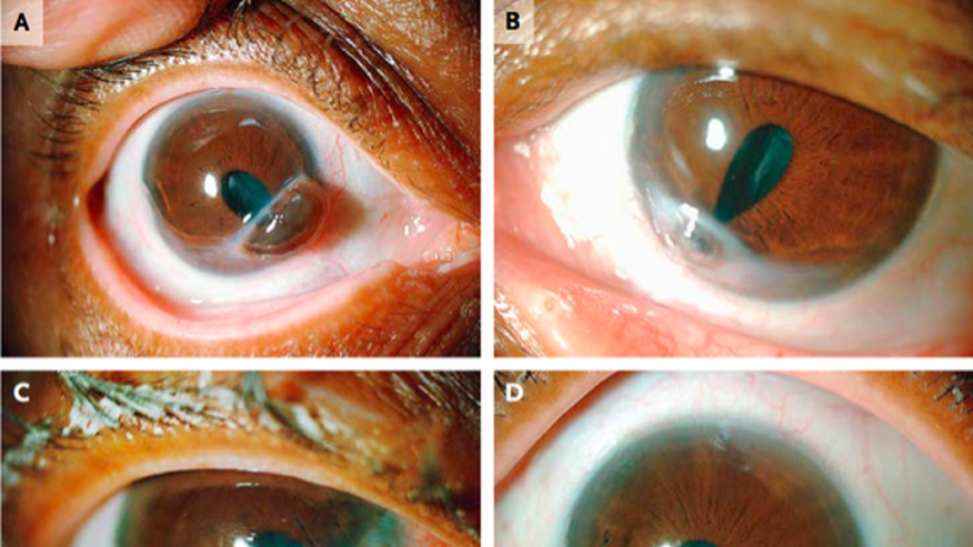 Images A and B show the patient's eyes with corneal melt. The images C and D show the eyes after surgical repair.