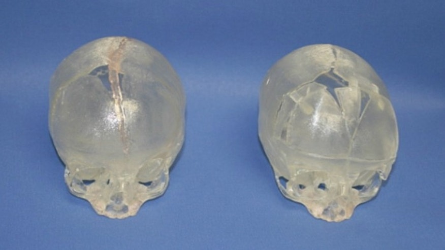 Before and after models of Gabriel's skull