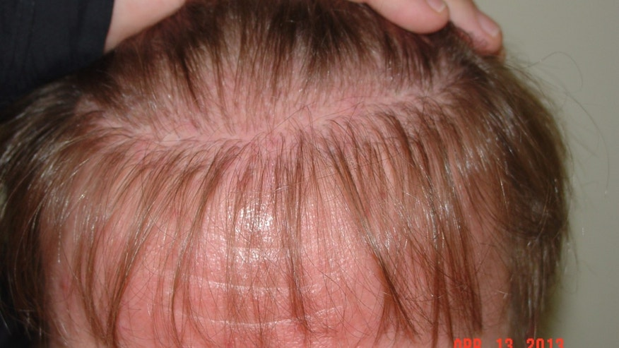 Before his corrective procedures, Jeff's hair was patchy and thinning beyond his transplant line, as seen here. (Image courtesy of Armani Medical)