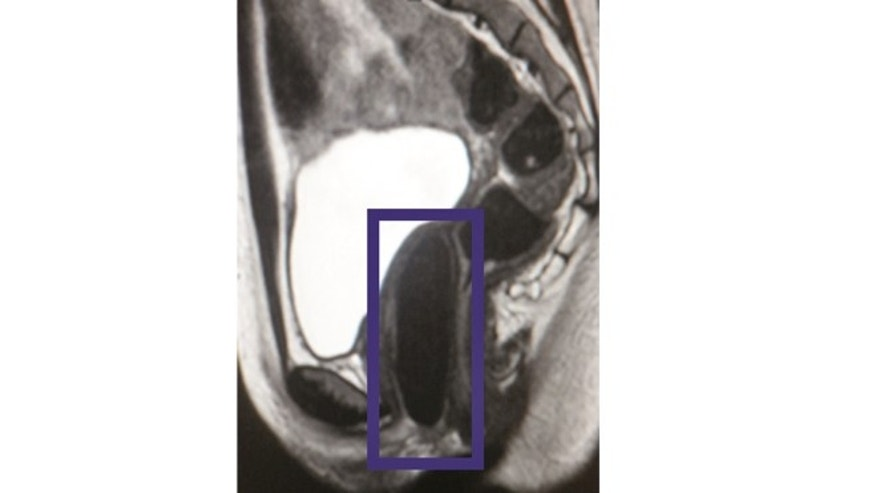 Patient's MRI image showing the lab-engineered vaginal organ. (Image courtesy of Wake Forest Institute for Regenerative Medicine)