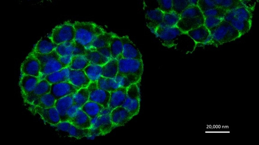 3D printed HeLa cells in tumor-like configurations