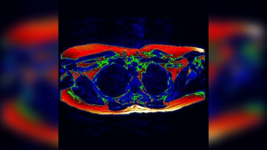 Digitally-enhanced axial MRI of the upper chest (as if viewed from the feet). Areas of potential brown fat are shown in green. (University of Warwick)