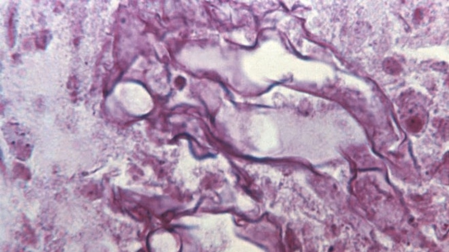 Tissue sample from a patient ill with mucormycosis. (CDC/ Dr. Lucille K. Georg)