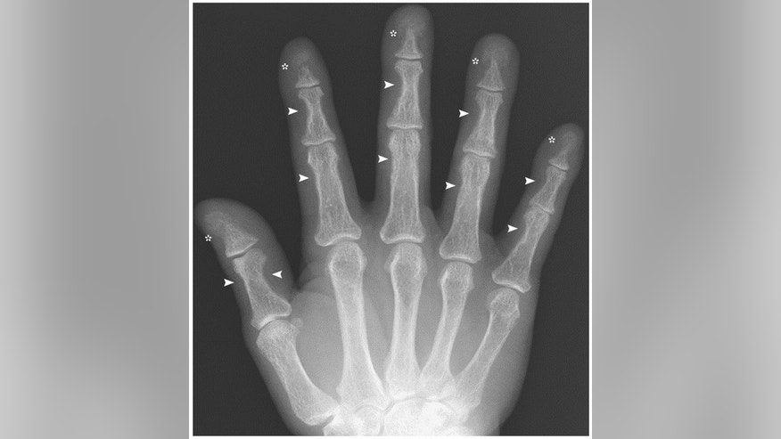 A hand X-ray shows bone loss in fingers, a sign of overactive parathyroid glands.