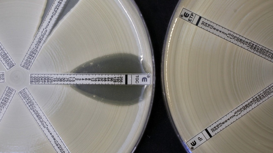 Two plates which were coated with an antibiotic-resistant bacteria called Klebsiella with a mutation called NDM 1 and then exposed to various antibiotics are seen at the Health Protection Agency in north London.