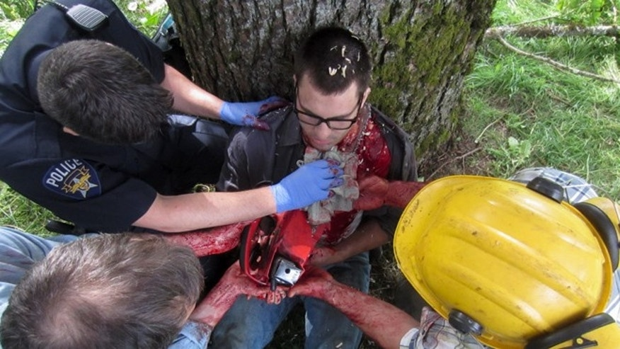 "In a scene from ""Untold Stories of the ER,"" actors recreate the chainsaw accident."