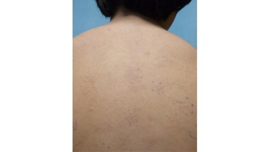 This undated photo provided by American Academy of Pediatrics shows a rash on an unidentified 11-year old boy from a nickel allergy. Case reports in medical journals detail nickel allergies from personal electronic devices, including laptops and cell phones. (AP Photo/American Academy of Pediatrics)