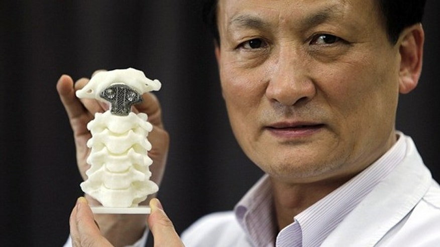 Dr. Liu Zhongjun, who performed the surgery at Peking University Hospital in Beijing holds a 3D-printed vertebra device. REUTERS