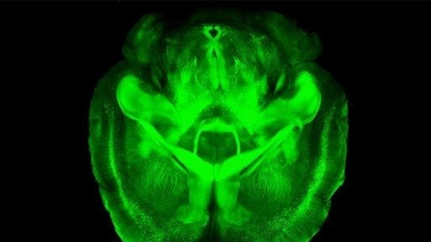 This undated image provided by Karl Deisseroth's lab shows a three-dimensional rendering of clarified mouse brain seen from below.