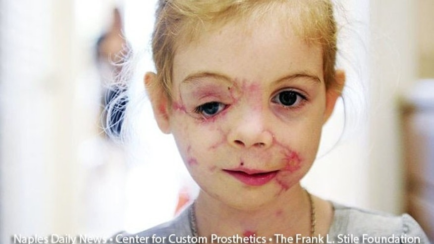 Docs join to help girl attacked by dogs after KFC hoax ...