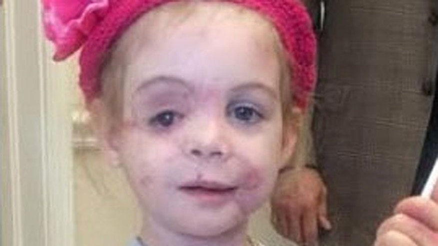 The girl was attacked by pitbulls while visiting her grandfather in April, and thrust into national headlines after an alleged incident at a KFC. (The Frank L. Stile Foundation)