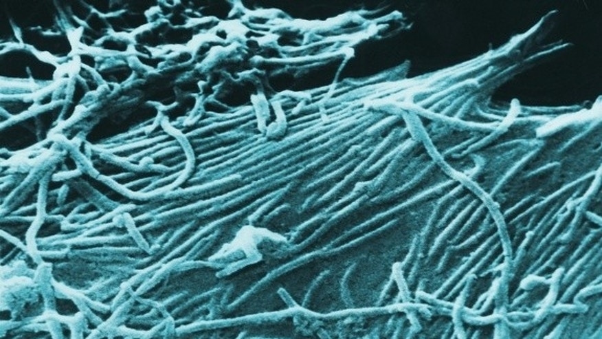 A scanning electron micrograph of the Ebola virus.