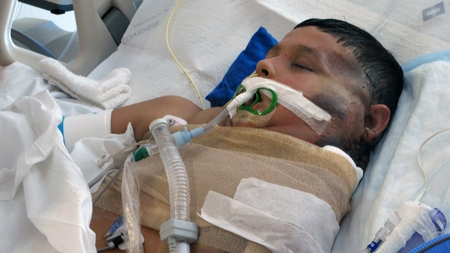 Nov. 24, 2014: In a file photo 11-year-old Mexican boy, Jose Antonio Ramirez Serrano recovers after surgery to remove a large portion of a massive tumor on his shoulder and neck at the University of New Mexico Hospital in Albuquerque.