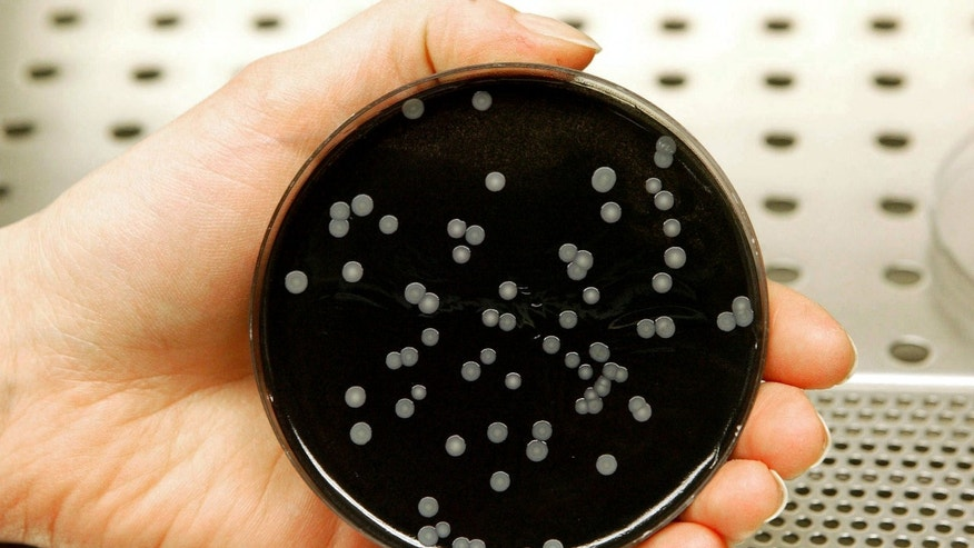 A technician holds a culture dish with colonies of legionella in a laboratory.