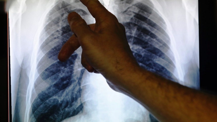 A doctor points to an x-ray showing a pair of lungs infected with TB (tuberculosis). (REUTERS/Luke MacGregor)