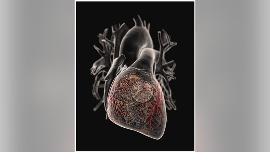 Doctors delivery gene-therapy products directly to the heart.