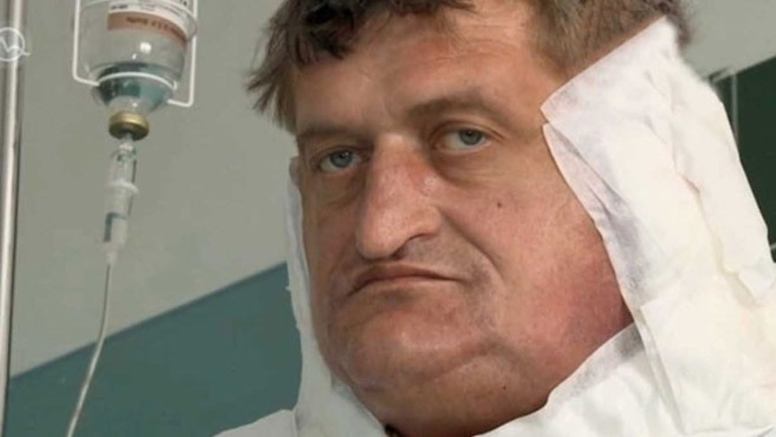 Slovak Man with One Stone Tumour Gets Final Op