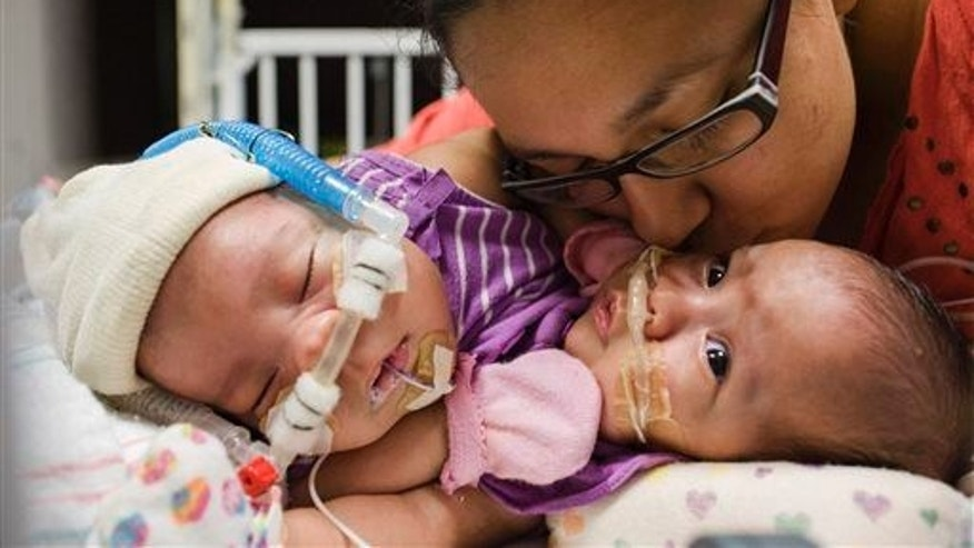 In this photo taken on July 25, 2014, Elysse Mata kisses her 3-month-old conjoined twins Adeline Faith, left, and Knatalye Hope Mata at Texas Children's Hospital in Houston.