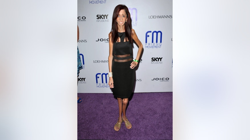 July 1, 2013. Author and motivational speaker Lizzie Velasquez at the Friend Movement Anti-Bullying Benefit Concert at the El Rey Theatre in Los Angeles.