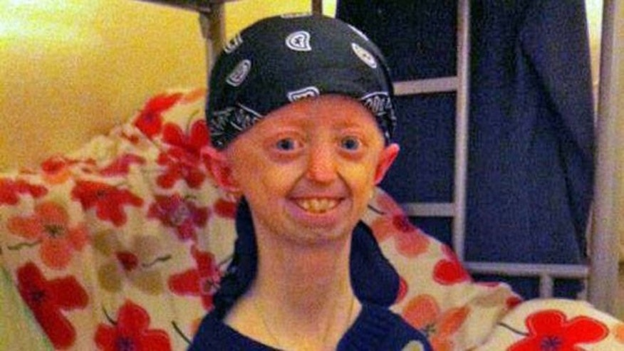 Lucy Parke from Ballyward dies from rare Progeria syndrome