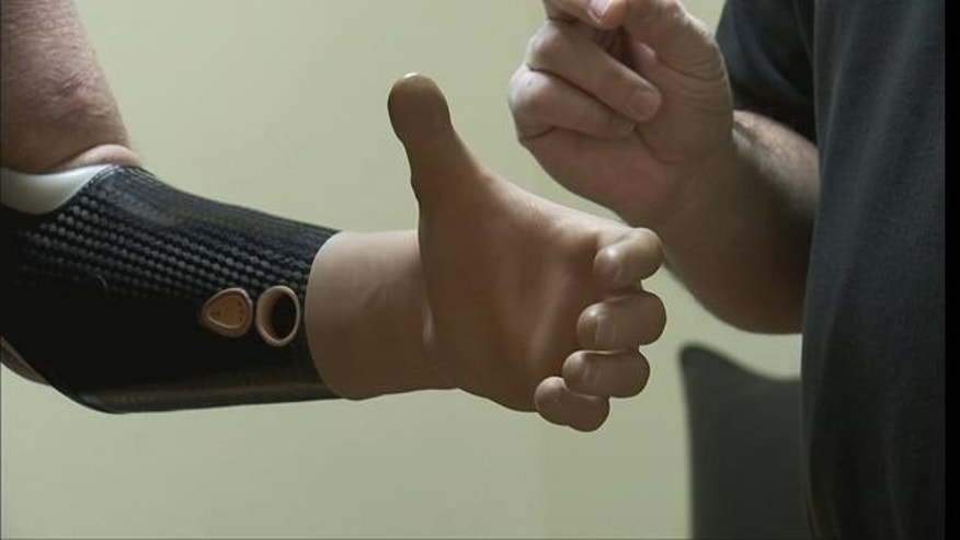 A new revolutionary prosthetic device called a Michelangelo Hand.