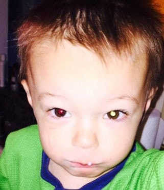 Illinois mom's cellphone photo leads to son's cancer diagnosis