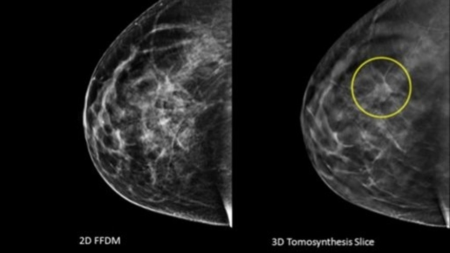Image taken using conventional mammography and an image using 3D, with a tumor circled that wasn't visible before.