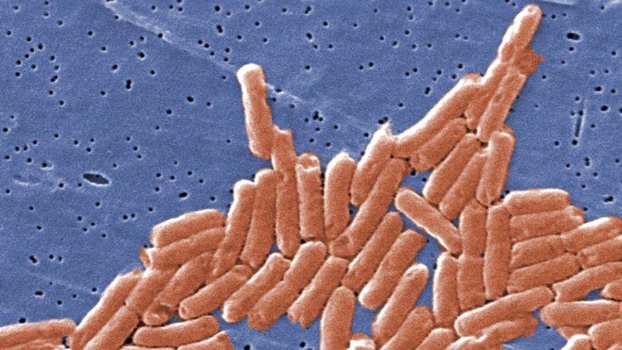 This colorized scanning electron micrograph (SEM) depicts a colony of rod-shaped Salmonella sp. bacteria