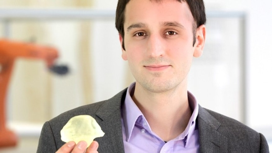 Steven Keating holds a 3-D printed model of his brain tumor.