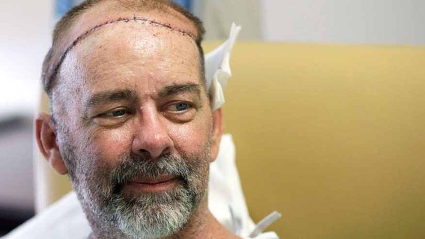 In this photo taken on Wednesday, June 3, 2015, James Boysen is interviewed in his hospital bed at Houston Methodist Hospital in Houston. Texas doctors say he received the world's first skull and scalp transplant from a human donor to help heal a large head wound from cancer treatment.