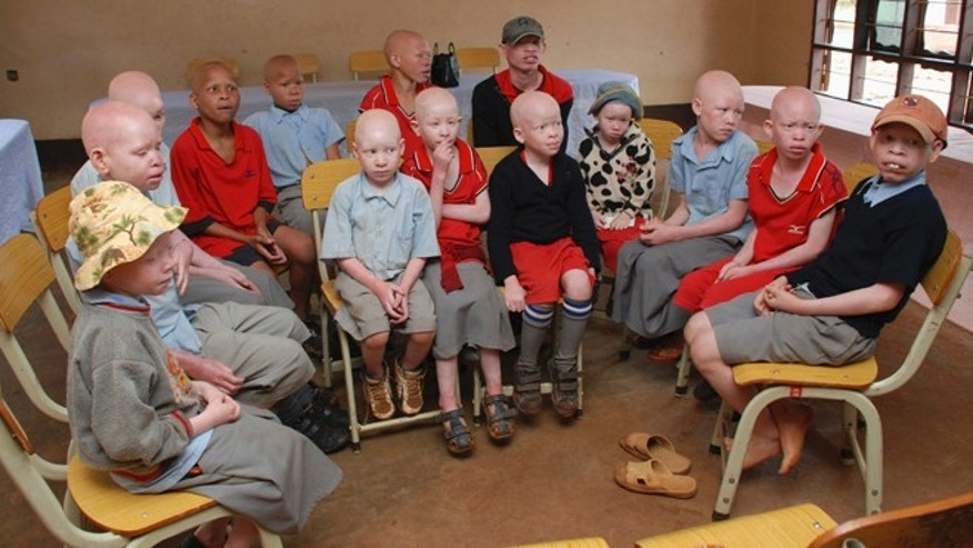 Nov. 24, 2011: Children with albinism sit at the Golden Valley English Medium School, a school sponsored by Under the Same Sun (UTSS), in Geita.