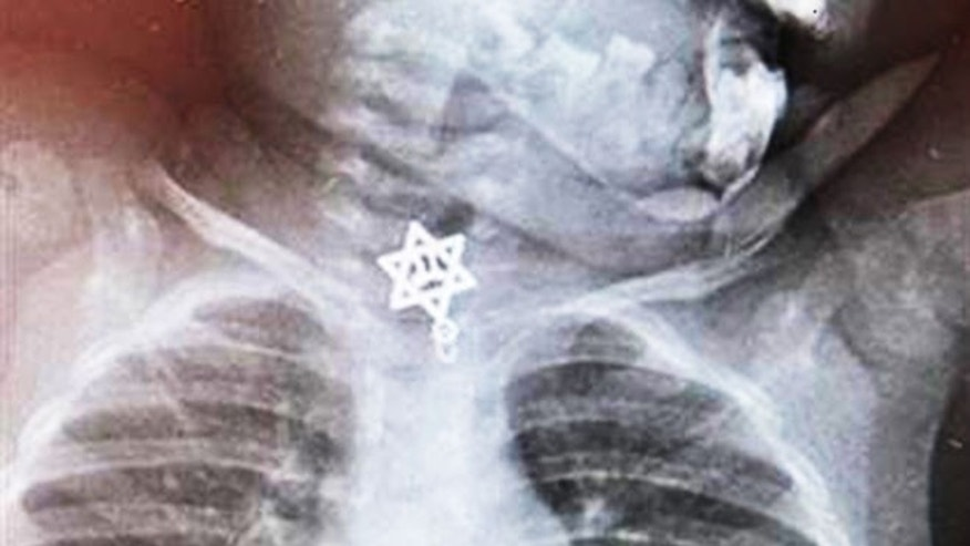 """The sharp edges of the object had become stuck right above the entrance to the girl's esophagus and had to be removed immediately and under general anaesthesia,"" Udio Katzanel, a doctor in the children's emergency department at Kaplan Hospital, told Central European News."