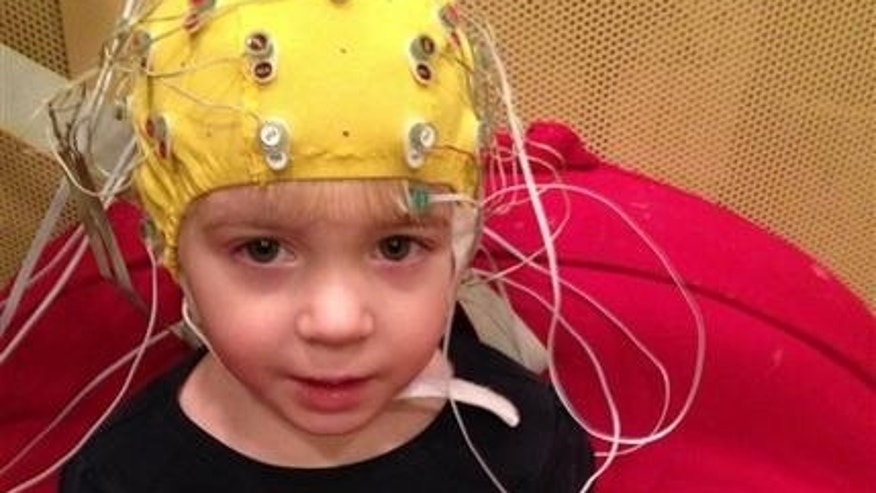 This undated handout photo provided by the Auditory Neuroscience Lab, Northwestern University, shows scalp electrodes to pick up how children's brains react to sounds such as speech in a noisy background.