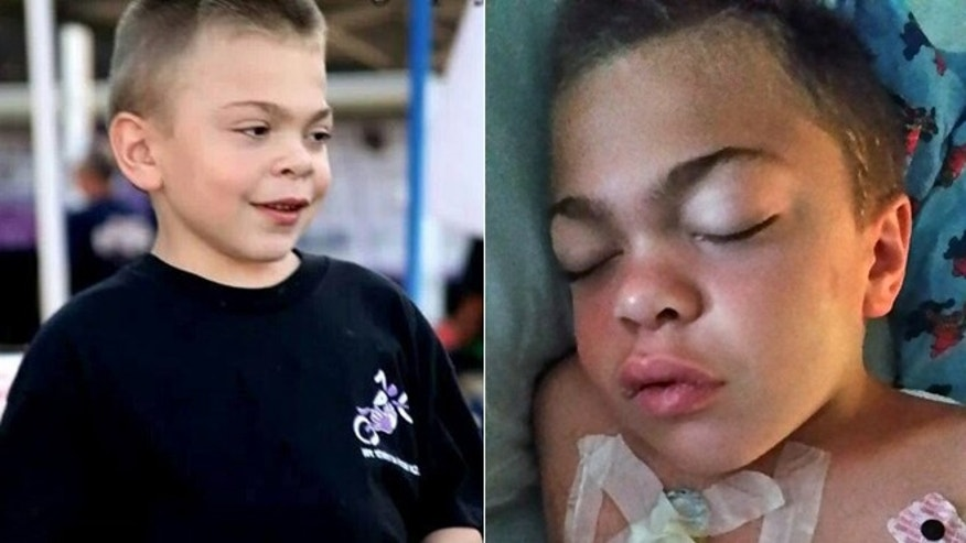 Jason Leider, pictured left in an undated photo and right after contracting meningitis, is in the fight of his life.