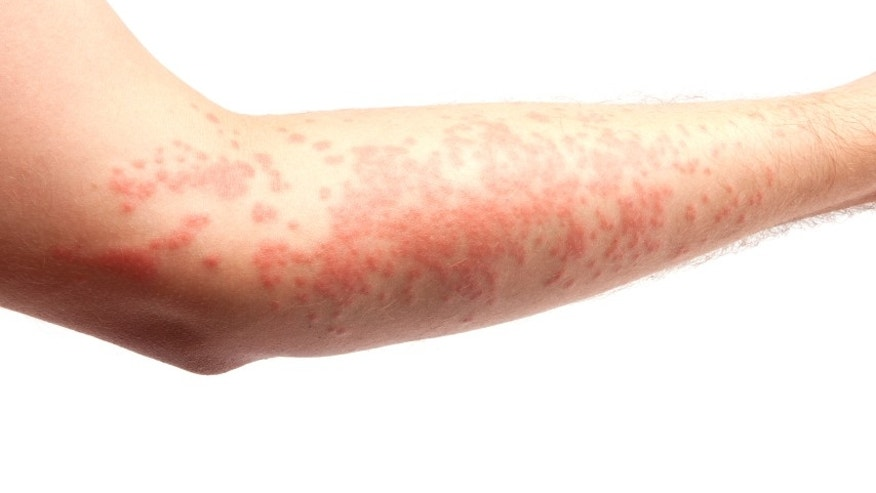 arm covered in a skin allergy,hives