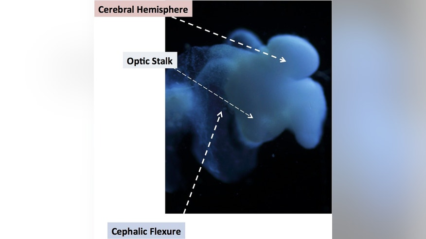 This image of the lab-grown brain is labeled to show identifiable structures: the cerebral hemisphere, the optic stalk and the cephalic flexure, a bend in the mid-brain region, all characteristic of the human fetal brain.