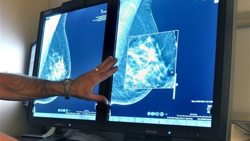 FILE - In this Tuesday, July 31, 2012, file photo, a radiologist compares an image from earlier, 2-D technology mammogram to the new 3-D Digital Breast Tomosynthesis mammography in Wichita Falls, Texas. The technology can detect much smaller cancers earlier. (Torin Halsey/Times Record News via AP)