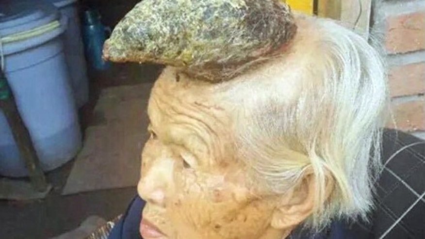 "An elderly villager has become known as the ""unicorn woman"" after an abnormal growth on her head appeared to take the shape of a single large horn."