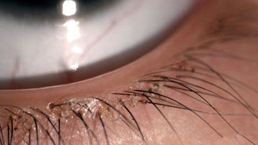 Girl has 20 eyelash lice removed
