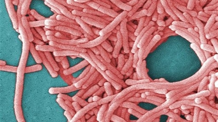 This undated image made available by the Centers for Disease Control and Prevention shows a large grouping of Legionella pneumophila bacteria (Legionnaires' disease). (Janice Haney Carr/Centers for Disease Control and Prevention via AP) .