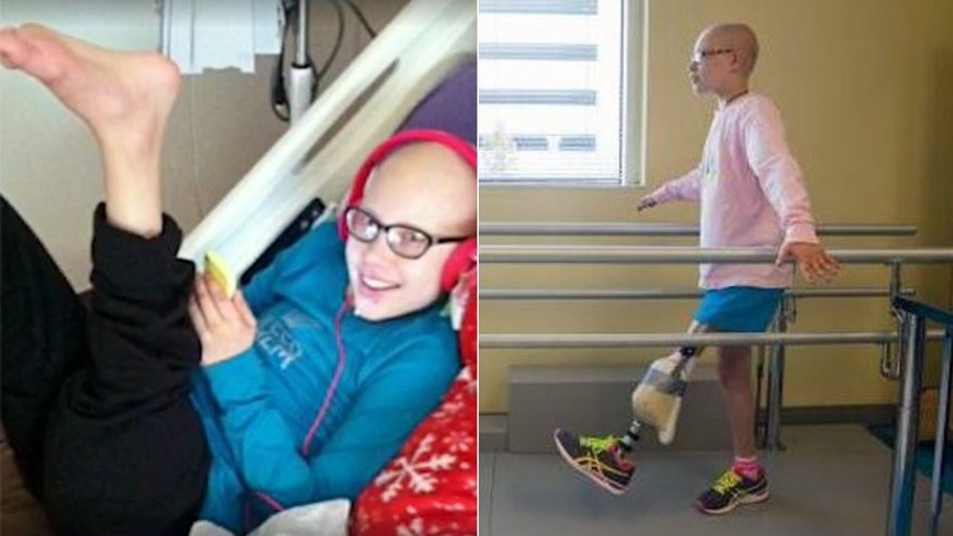 Grace Bunke, 12, is determined to run again after undergoing a revolutionary procedure to create a new knee joint.