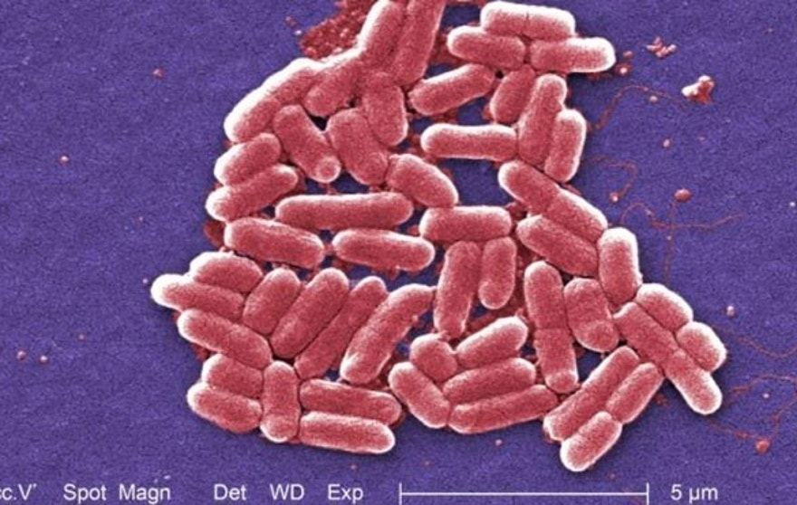 This colorized scanning electron micrograph (SEM) depicts a number of Escherichia coli (E. coli) bacteria.