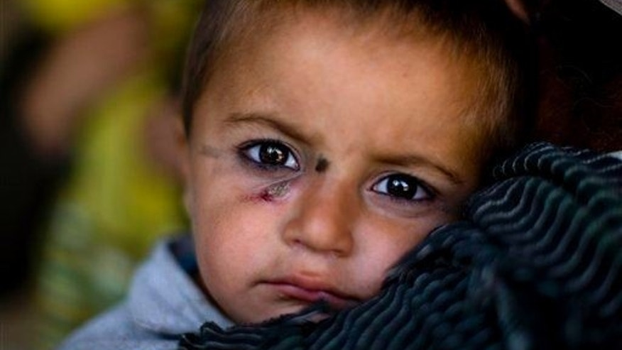 An Afghan boy affected by leishmaniasis waits to be seen by a doctor Monday in Kabul, Afghanistan.
