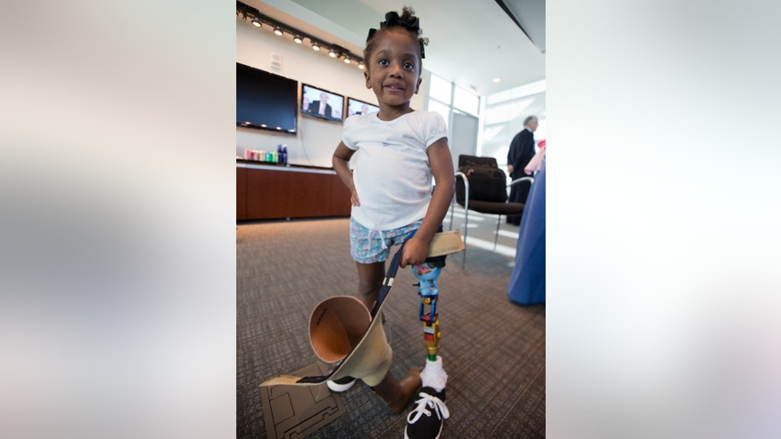 Miyah Williams, 3, holds her old prosthetic leg while showing off a new one in Washington, Friday, Oct. 23, 2015, during a meeting on the need for innovative pediatric medical devices hosted by Children's National Health System. Miyah struggled with a painful and hard-to-move socket attaching her prosthesis until last August, when she received a new softer and more flexible kind.  (AP Photo/Manuel Balce Ceneta)