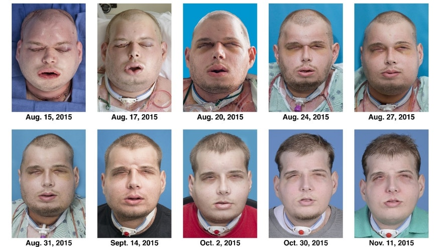 This combination of Aug. 15, 2015 to Nov. 11, 2015 photo shows the recuperation of Patrick Hardison after his facial transplant surgery in New York.