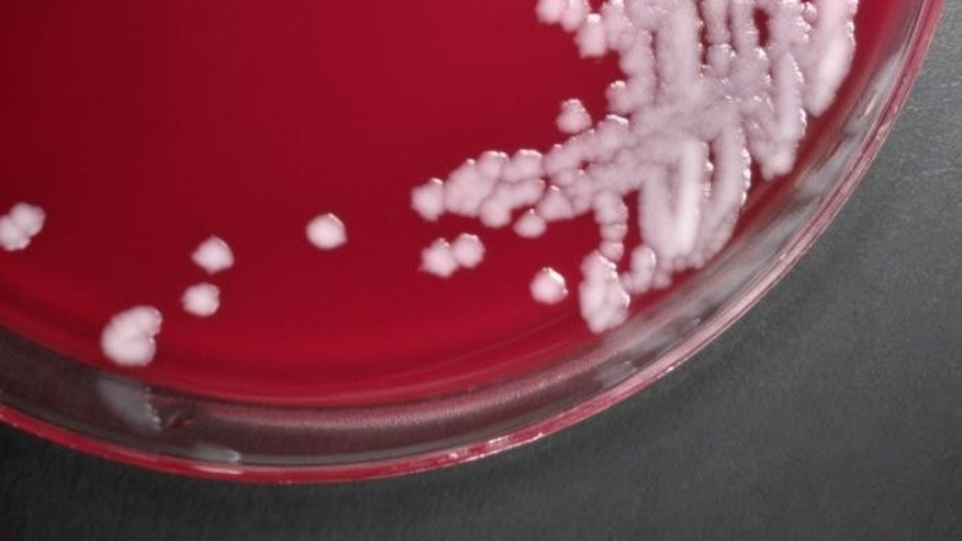 This photograph depicts the colonial growth displayed by Sterne strain members of the Gram-positive bacterium, Bacillus anthracis. Anthrax is a serious infectious disease caused by gram-positive, rod-shaped bacteria known as Bacillus anthracis. (CDC/ Dr. Todd Parker. Ph.D.; Assoc. Director for Lab. Science/DPEI(Acting) and LRN Training Coordinator)