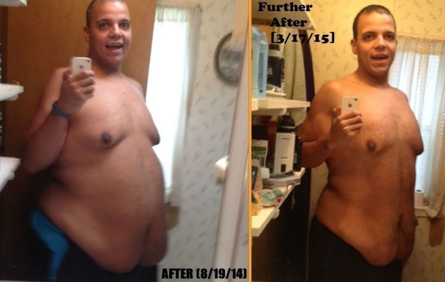 ... for surgery to remove excess skin after losing 400 pounds | Fox News