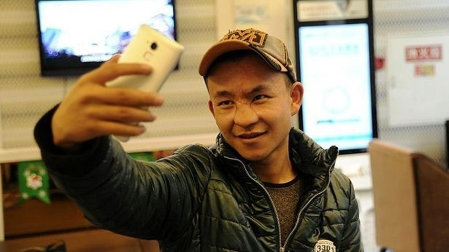 Li Ming poses for his first selfie after surgeons gave him a new nose.
